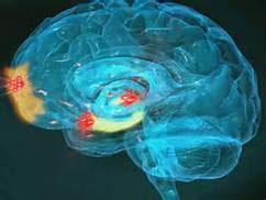 Neurodeescalazione